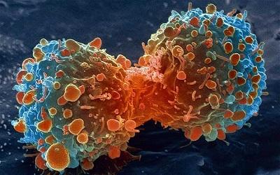 癌症与顺势疗法.